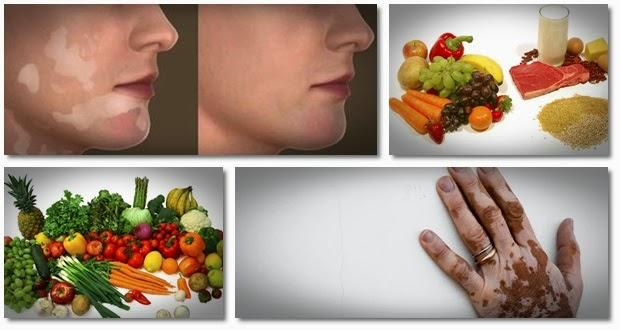 nutricion-para-curar-el-vitiligo