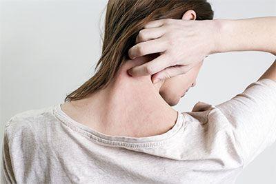 como-prevenir-la-piel-irritada-por-alergias-en-dietetica-online