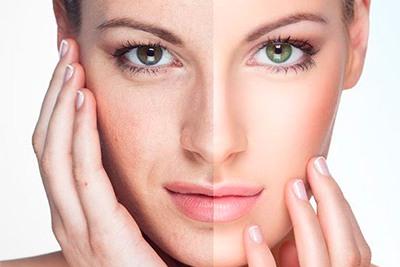 Piel envejecida por los radicales libres del organismo. Mantener la piel joven. sin arrugas con atioxidantes naturales